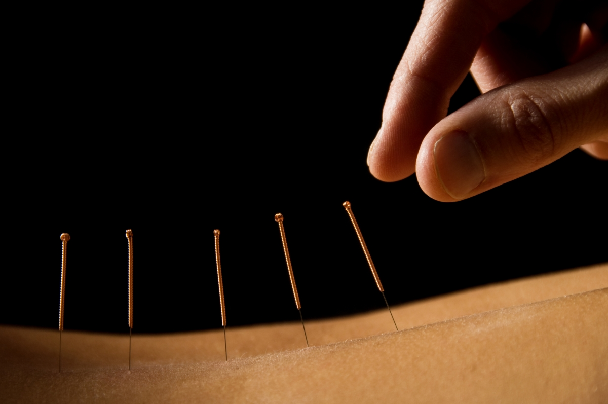 acupuncture-e1510073658555